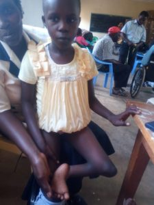 Faith will have her left foot amputated and then fit with a prosthetic leg so she can walk.